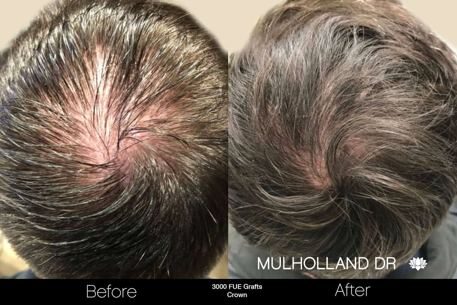 Artas Hair Transplant - Before and After Gallery - Patient Photo 91