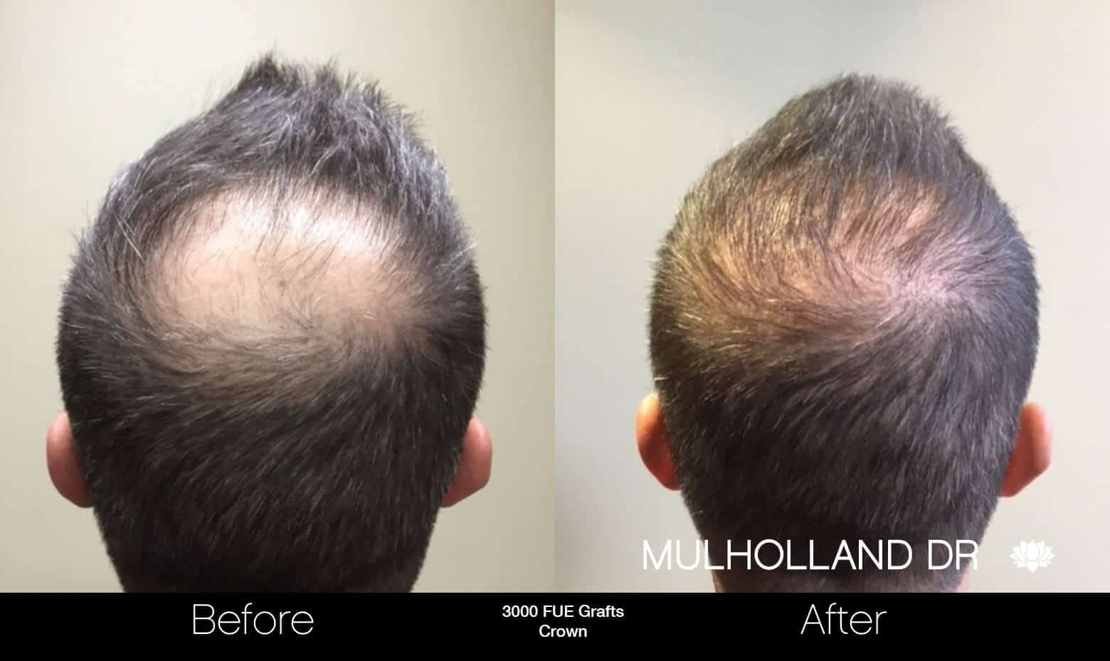 Artas Hair Transplant - Before and After Gallery - Patient Photo 92