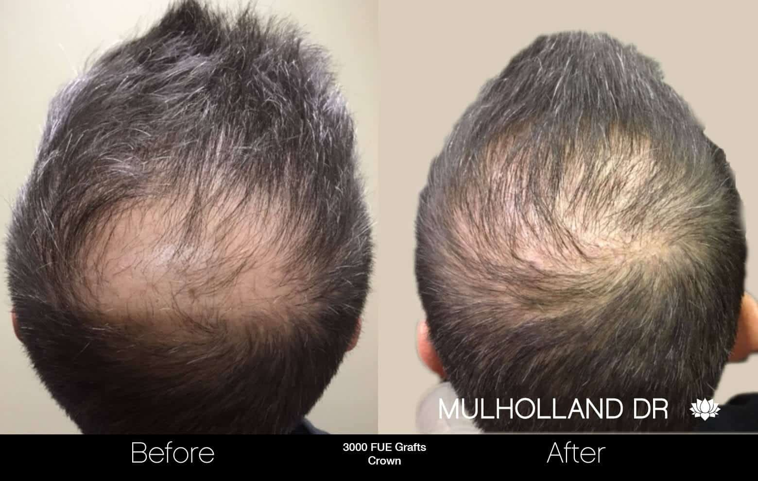 Artas Hair Transplant - Before and After Gallery - Patient Photo 93