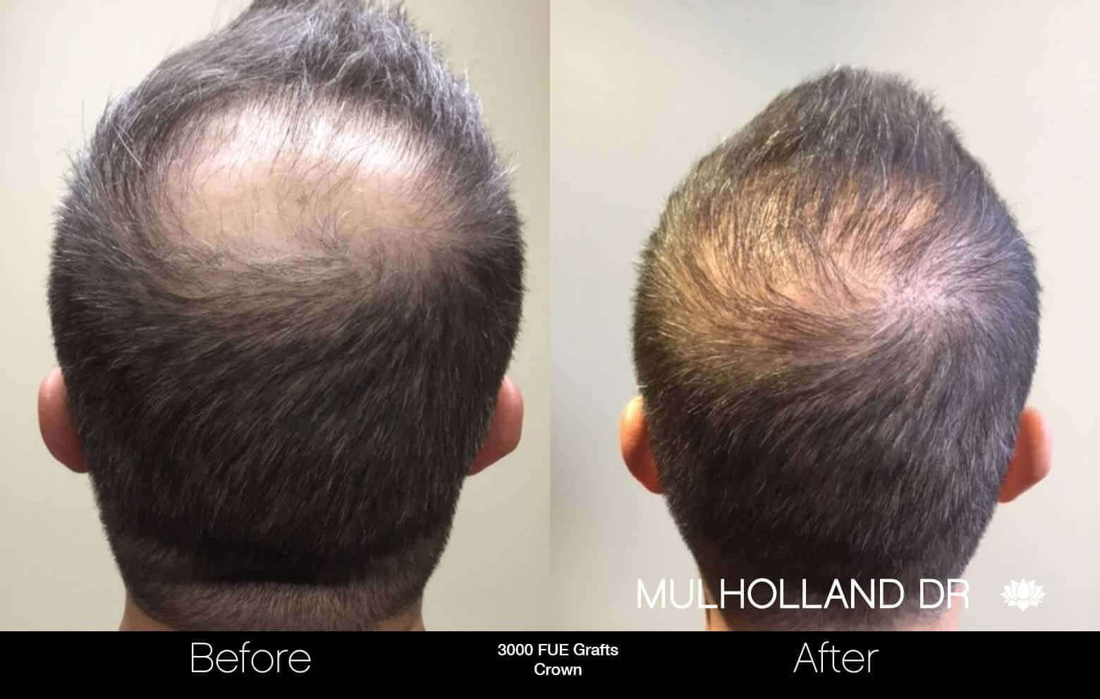 Artas Hair Transplant - Before and After Gallery - Patient Photo 94