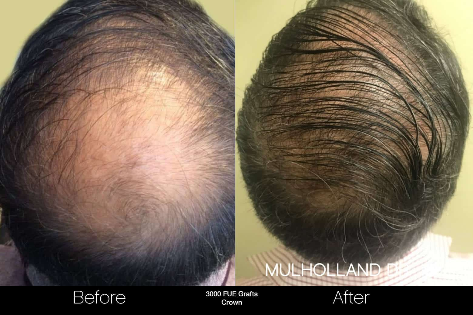 Artas Hair Transplant - Before and After Gallery - Patient Photo 95