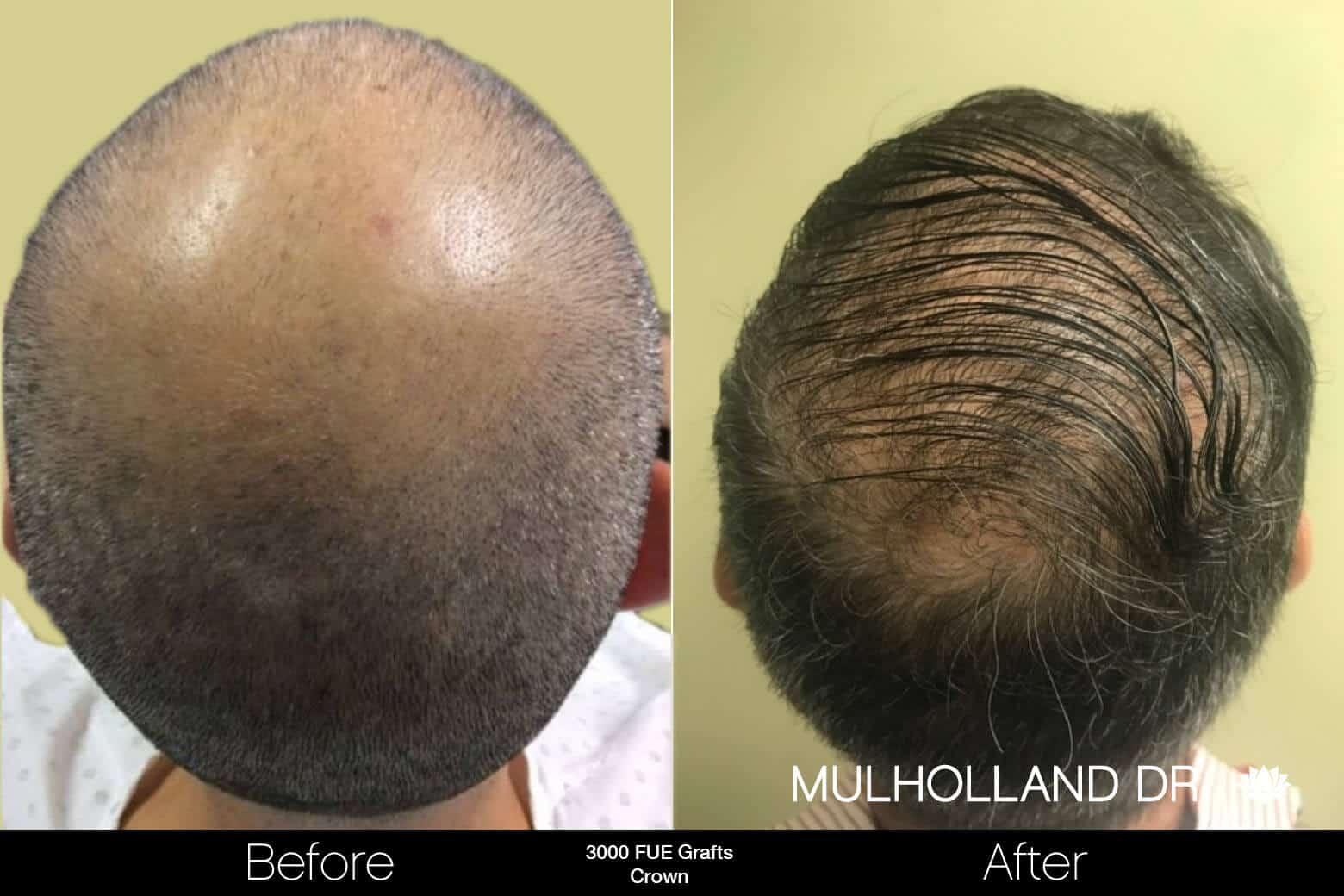 Artas Hair Transplant - Before and After Gallery - Patient Photo 96