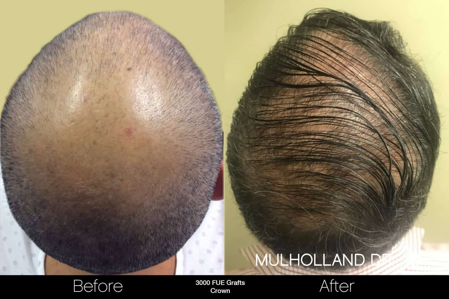 Artas Hair Transplant - Before and After Gallery - Patient Photo 97