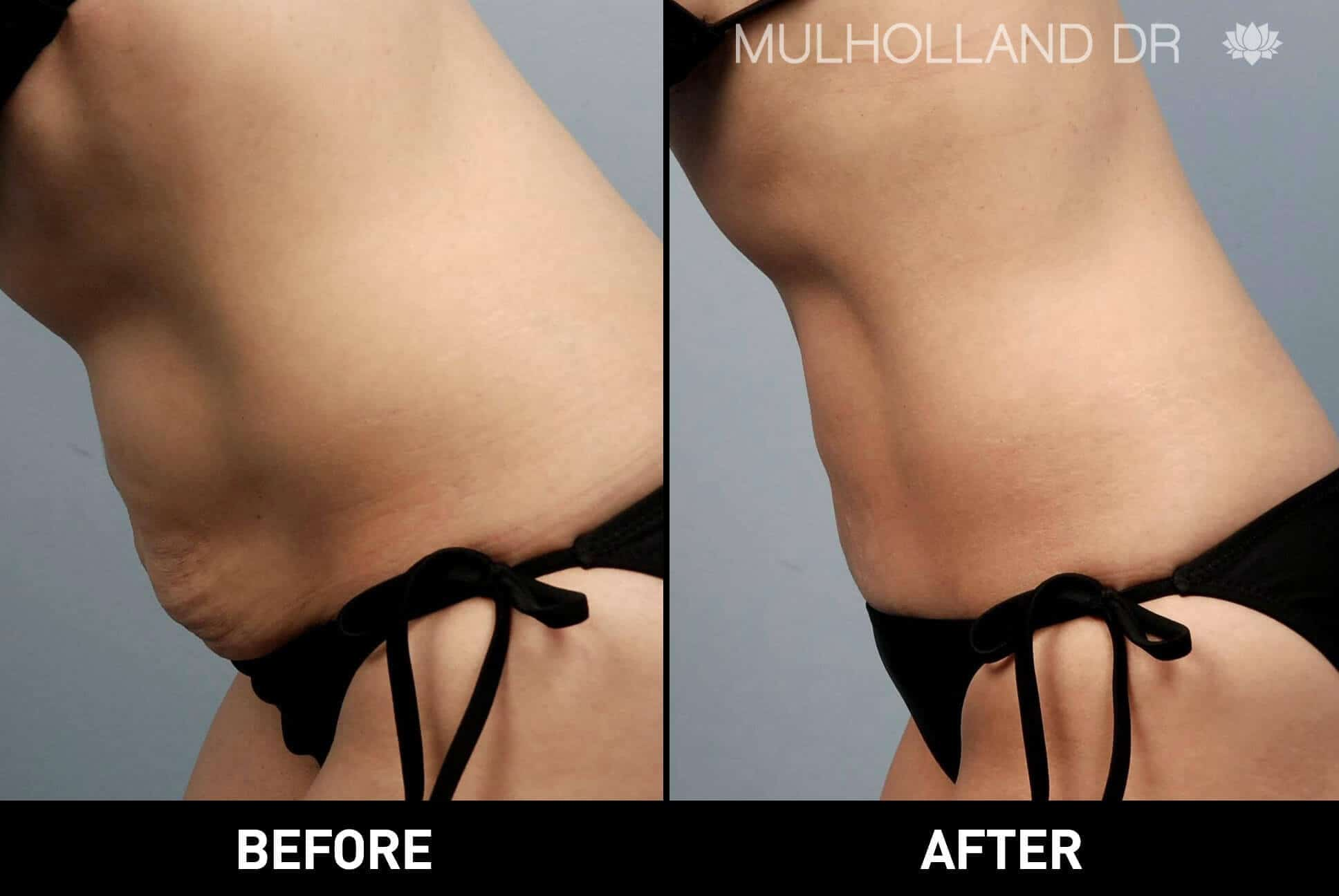 BodyTite Liposuction - Before and After Gallery - Patient Photo 10