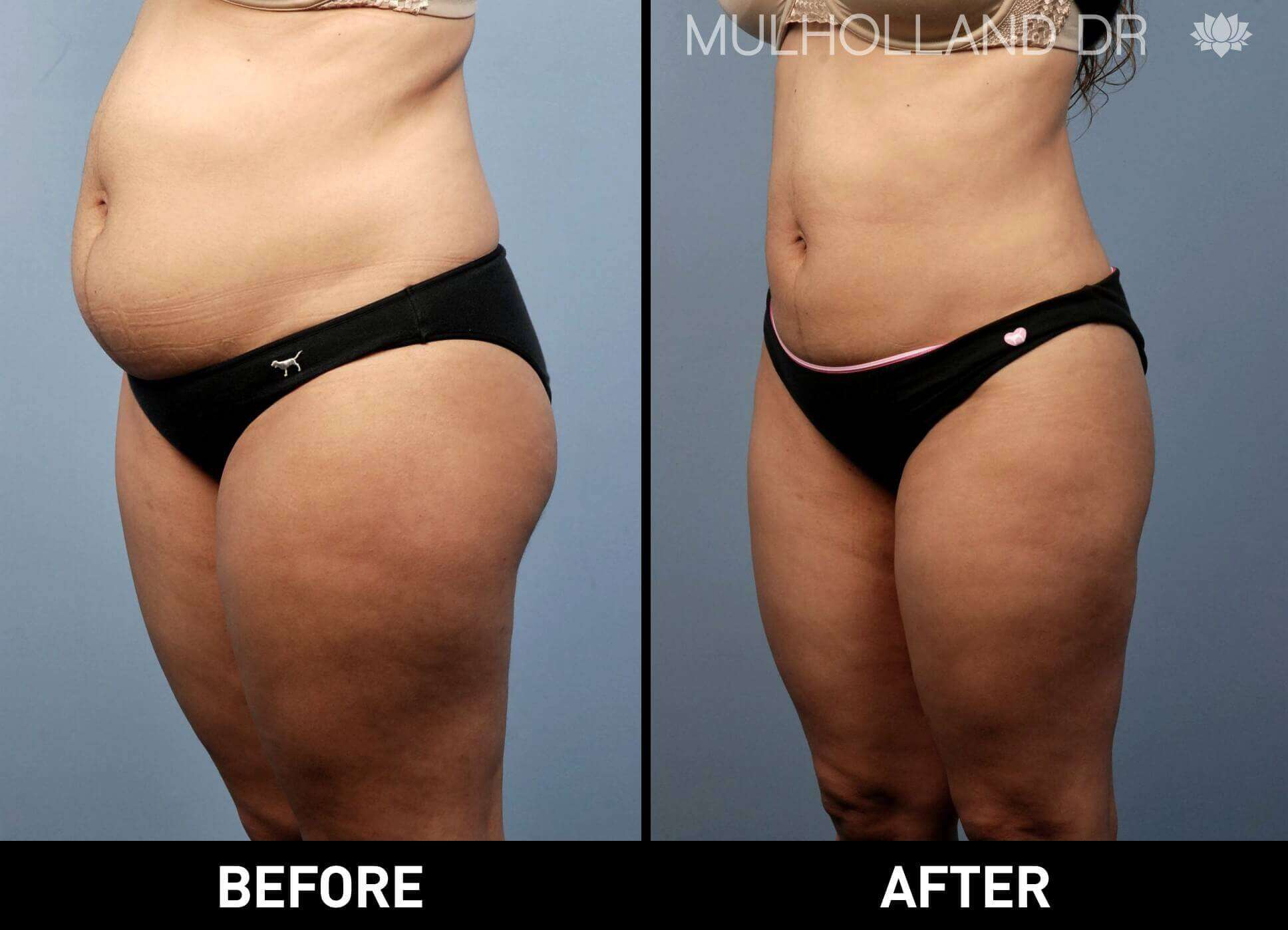 BodyTite Liposuction - Before and After Gallery - Patient Photo 14