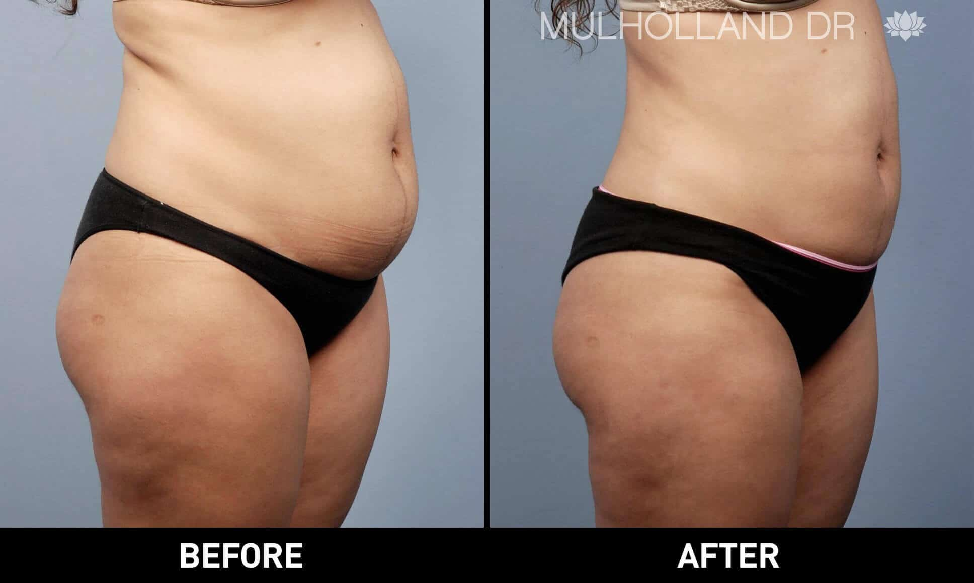 BodyTite Liposuction - Before and After Gallery - Patient Photo 15