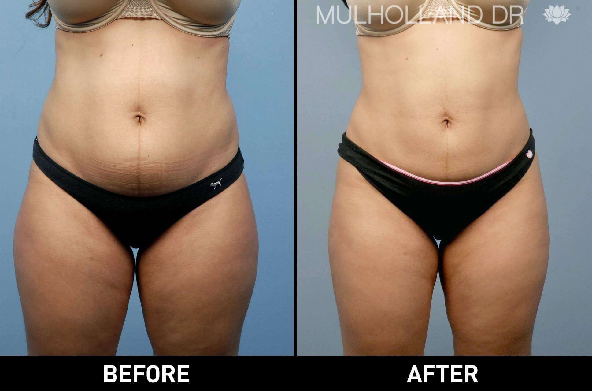 BodyTite Liposuction - Before and After Gallery - Patient Photo 17