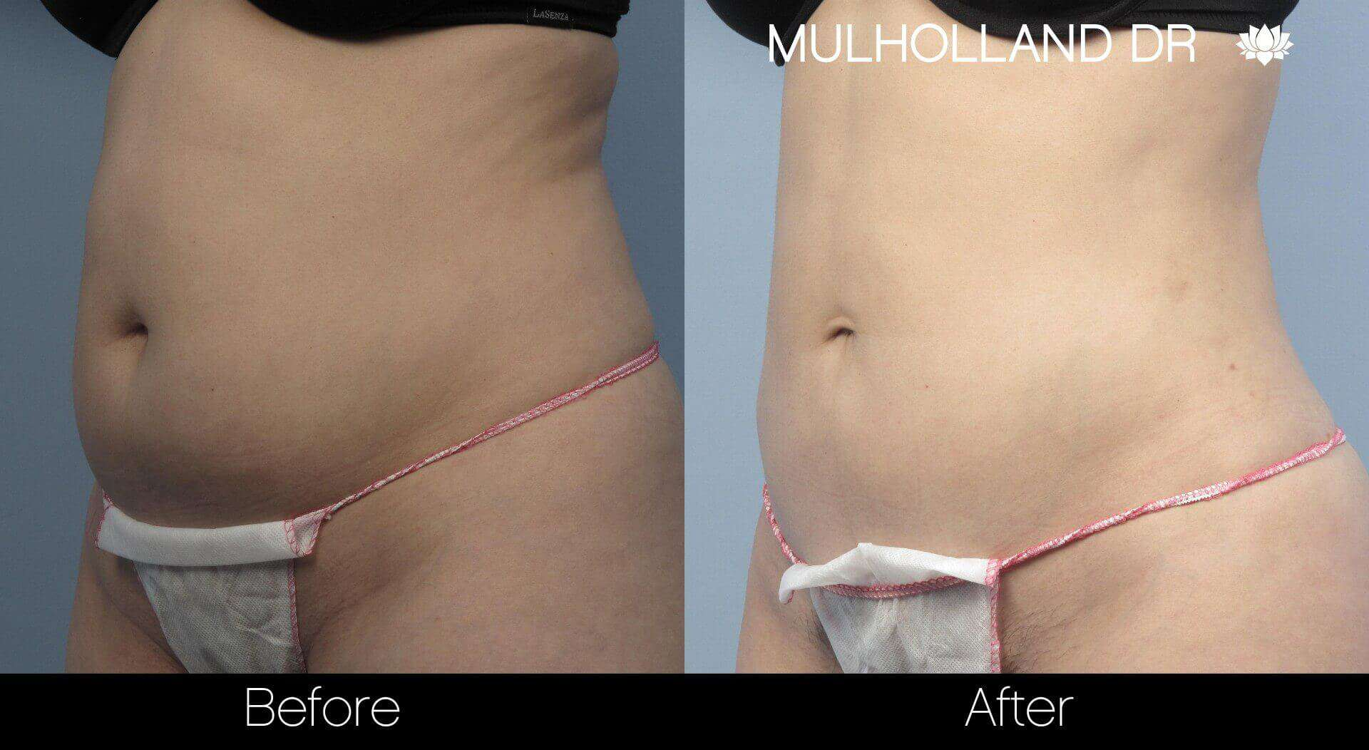 BodyTite Liposuction - Before and After Gallery - Patient Photo 21