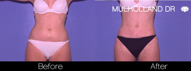 BodyTite Liposuction - Before and After Gallery - Patient Photo 36