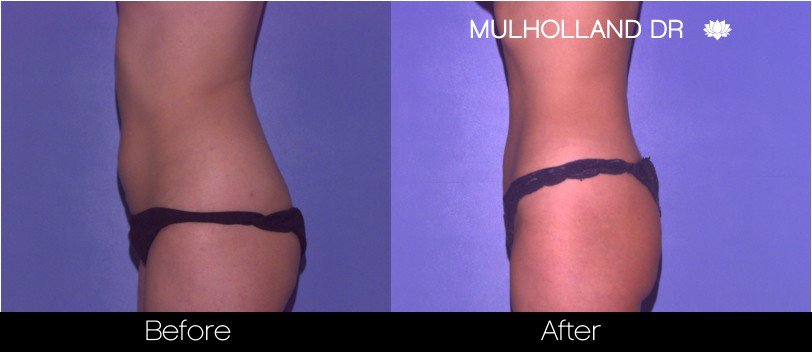 BodyTite Liposuction - Before and After Gallery - Patient Photo 40