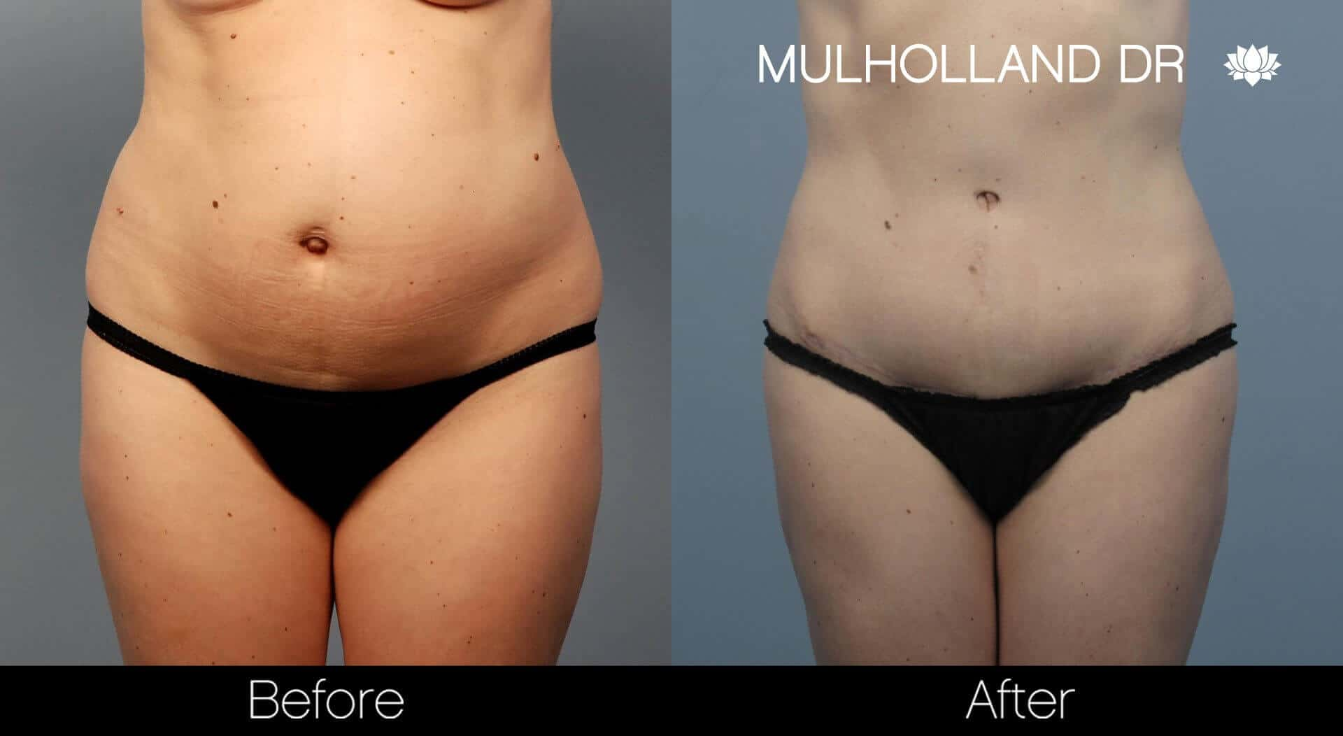 BodyTite Liposuction - Before and After Gallery - Patient Photo 56