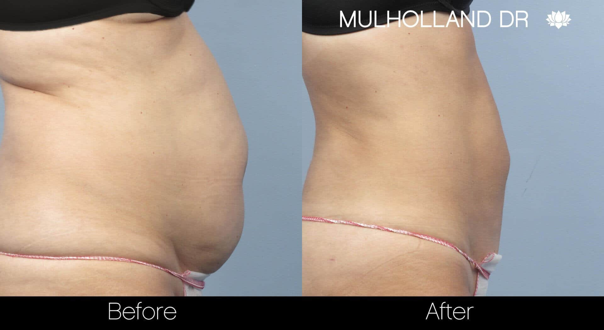 BodyTite Liposuction - Before and After Gallery - Patient Photo 6