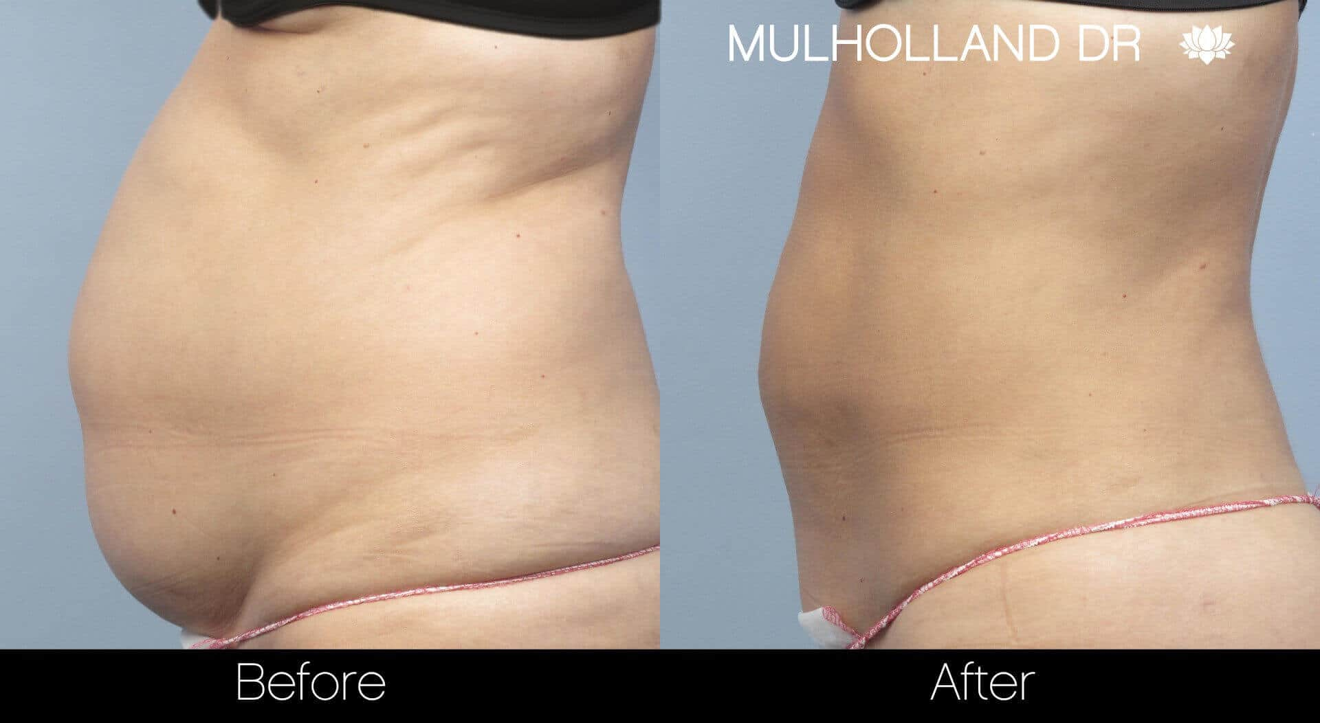 BodyTite Liposuction - Before and After Gallery - Patient Photo 7
