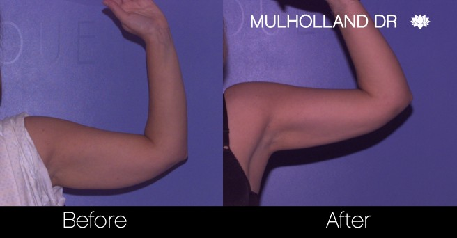 BodyTite Liposuction - Before and After Gallery - Patient Photo 71