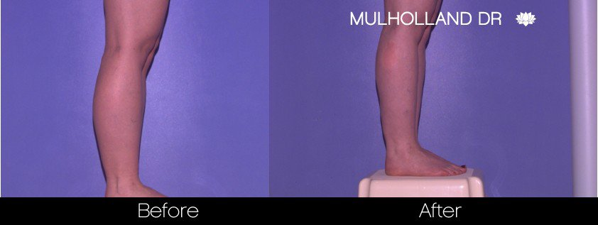 BodyTite Liposuction - Before and After Gallery - Patient Photo 87