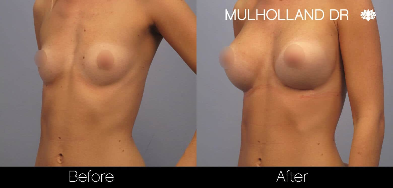 Breast Augmentation - Before and After Gallery - Patient Photo 10