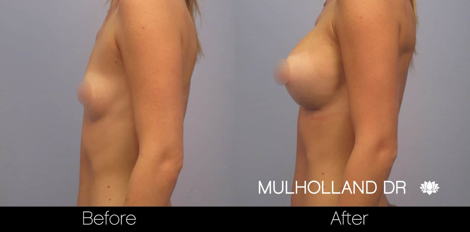 Breast Augmentation - Before and After Gallery - Patient Photo 11