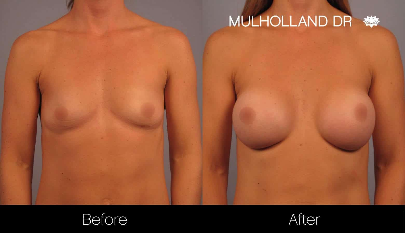 Breast Augmentation - Before and After Gallery - Patient Photo 12