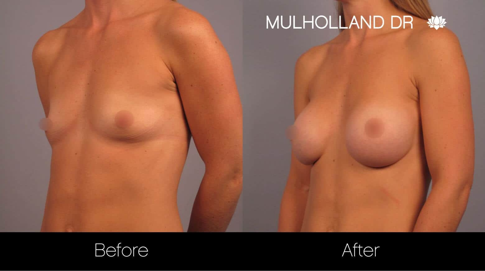 Breast Augmentation - Before and After Gallery - Patient Photo 13