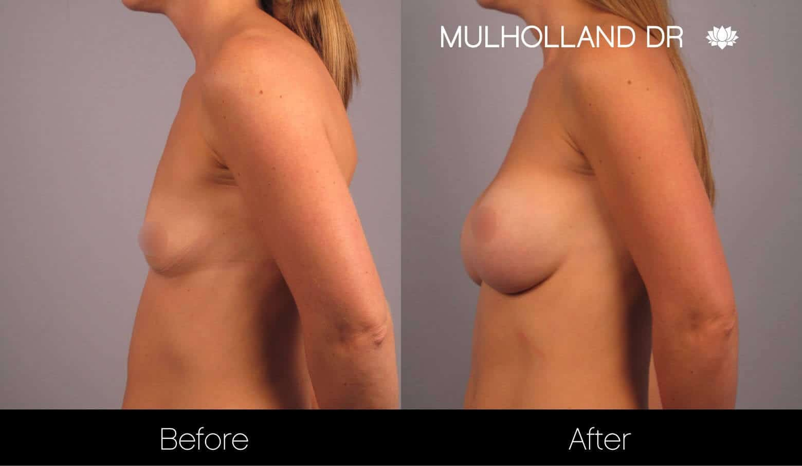 Breast Augmentation - Before and After Gallery - Patient Photo 14