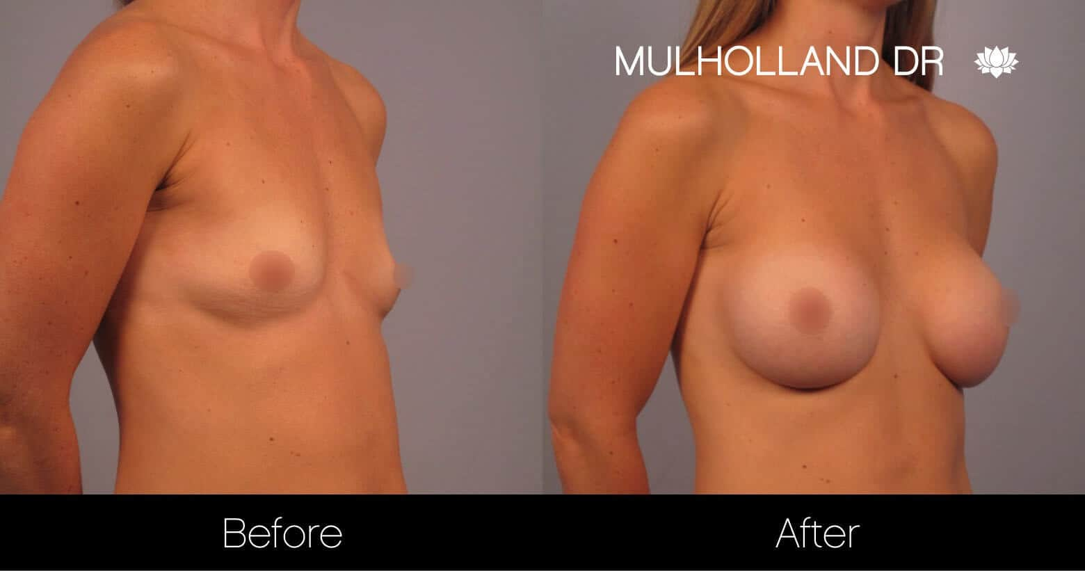 Breast Augmentation - Before and After Gallery - Patient Photo 15