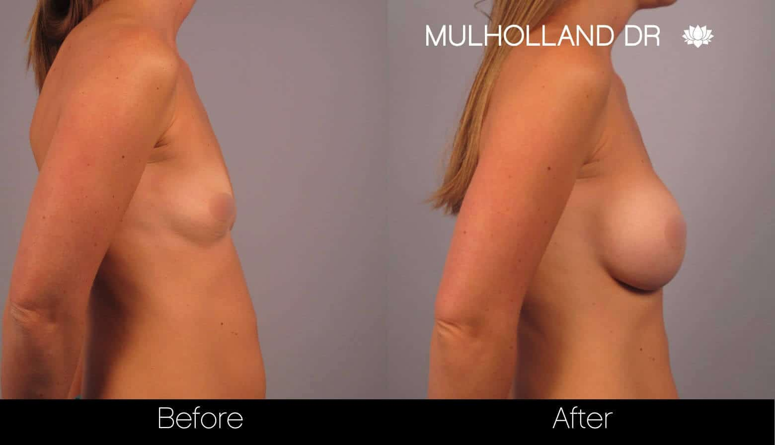Breast Augmentation - Before and After Gallery - Patient Photo 16