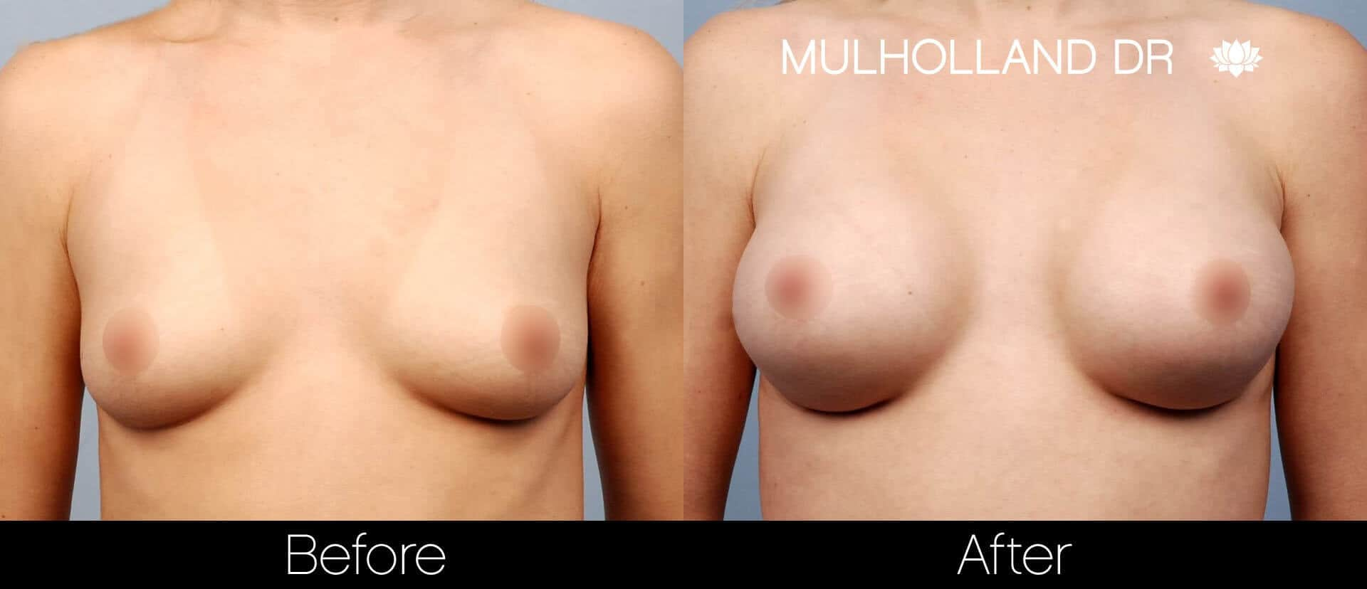 Breast Augmentation - Before and After Gallery - Patient Photo 17