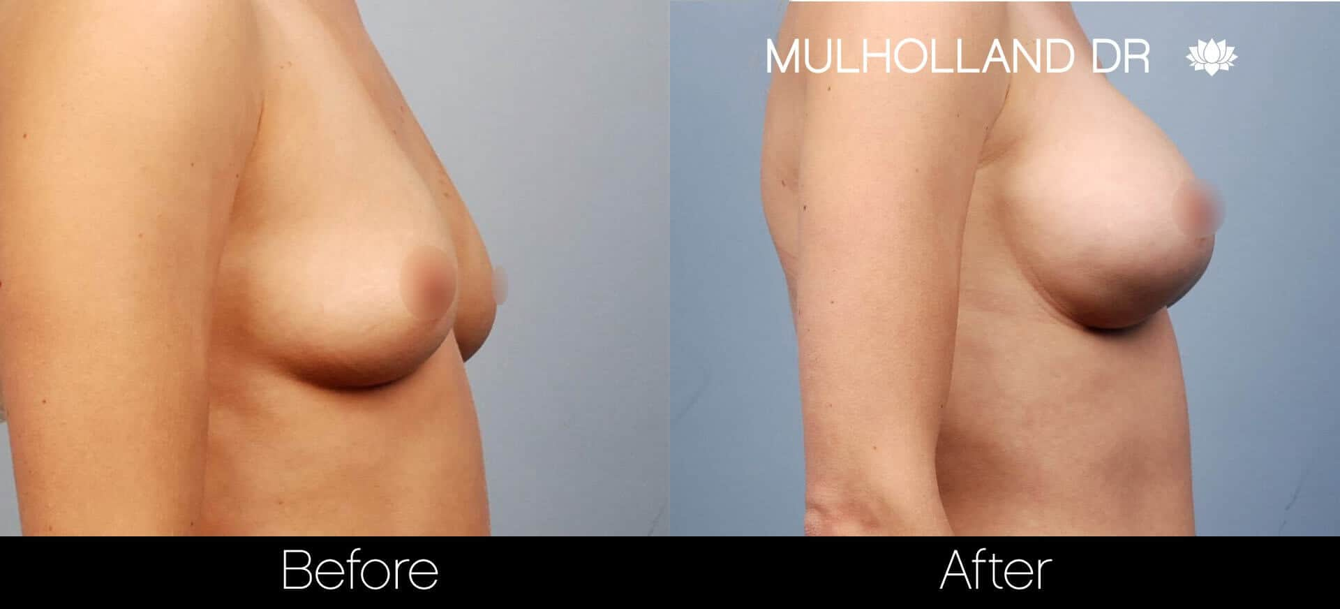 Breast Augmentation - Before and After Gallery - Patient Photo 18