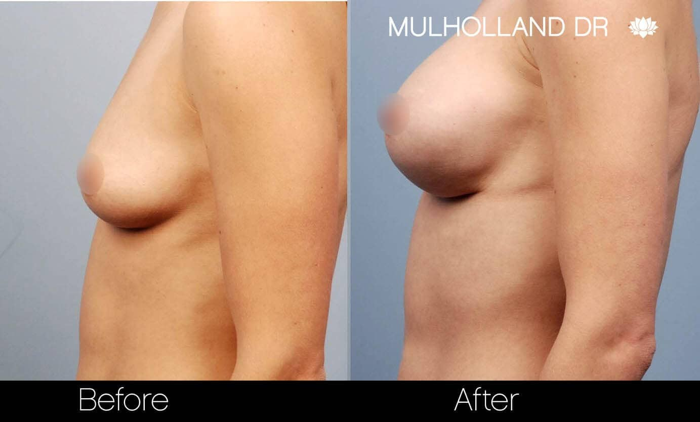 Breast Augmentation - Before and After Gallery - Patient Photo 19