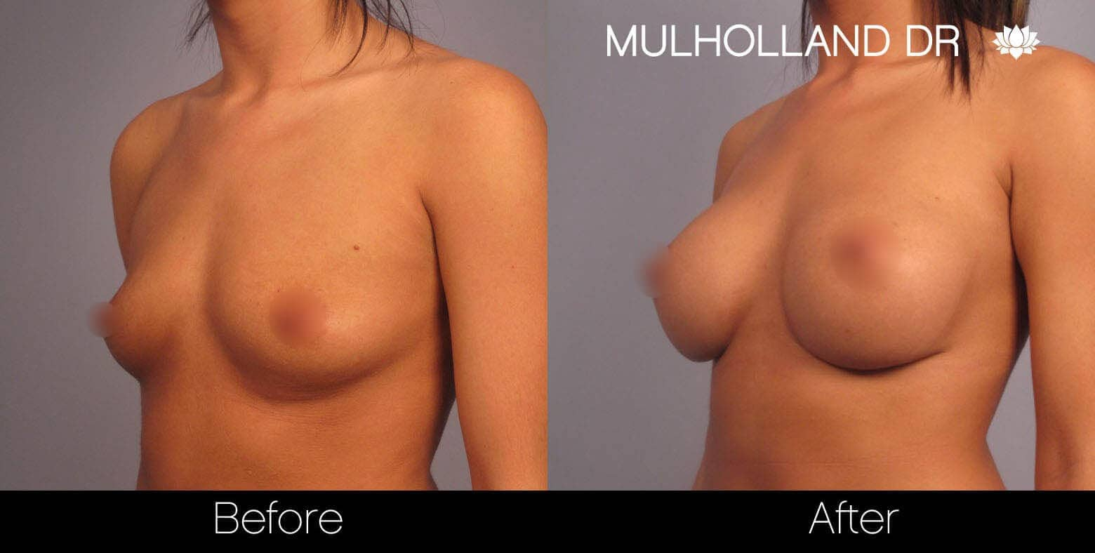 Breast Augmentation - Before and After Gallery - Patient Photo 2