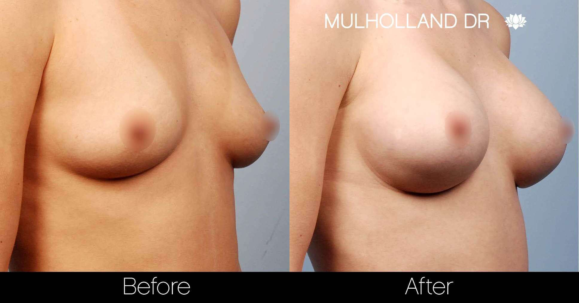 Breast Augmentation - Before and After Gallery - Patient Photo 20