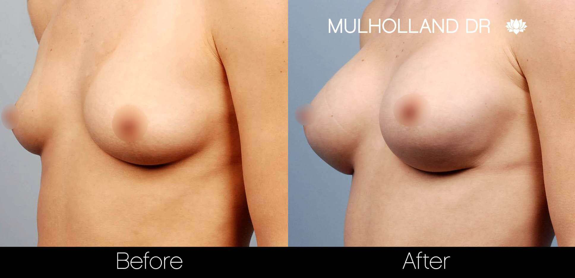 Breast Augmentation - Before and After Gallery - Patient Photo 21