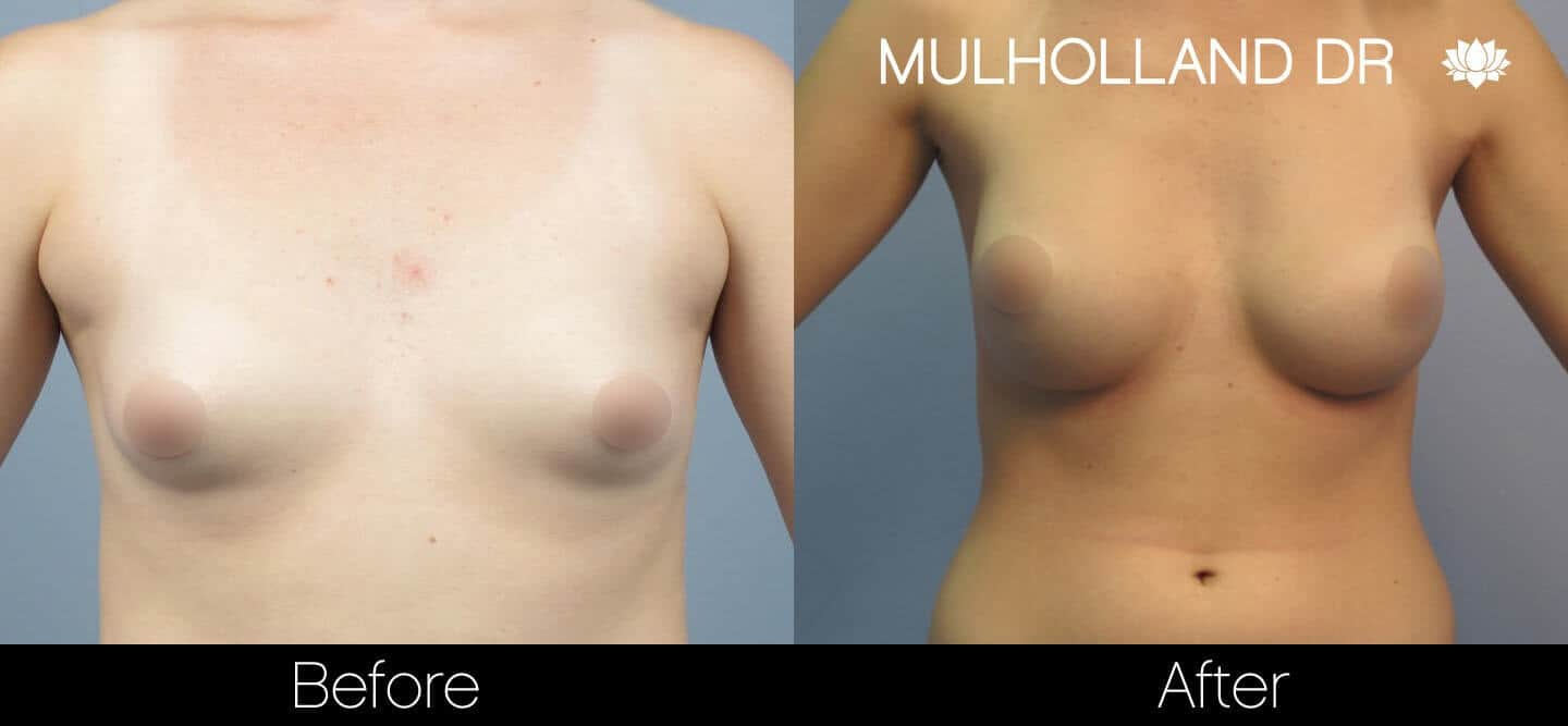 Breast Augmentation - Before and After Gallery - Patient Photo 22