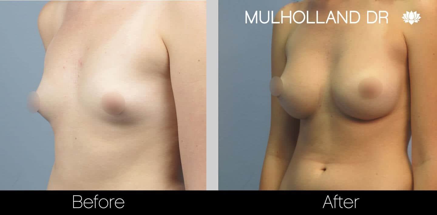 Breast Augmentation - Before and After Gallery - Patient Photo 23
