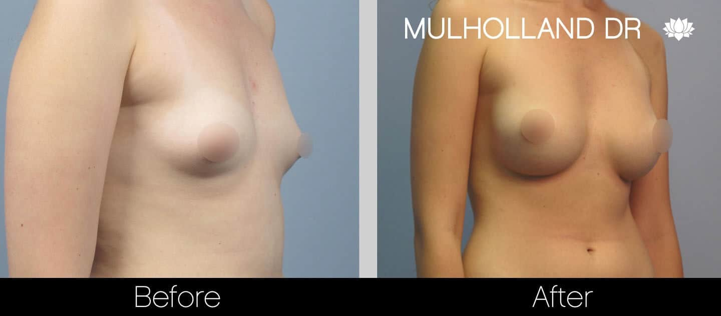 Breast Augmentation - Before and After Gallery - Patient Photo 24