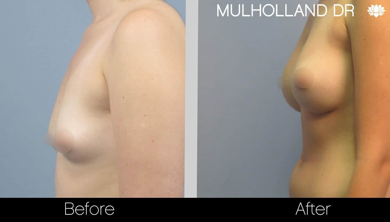Breast Augmentation - Before and After Gallery - Patient Photo 25