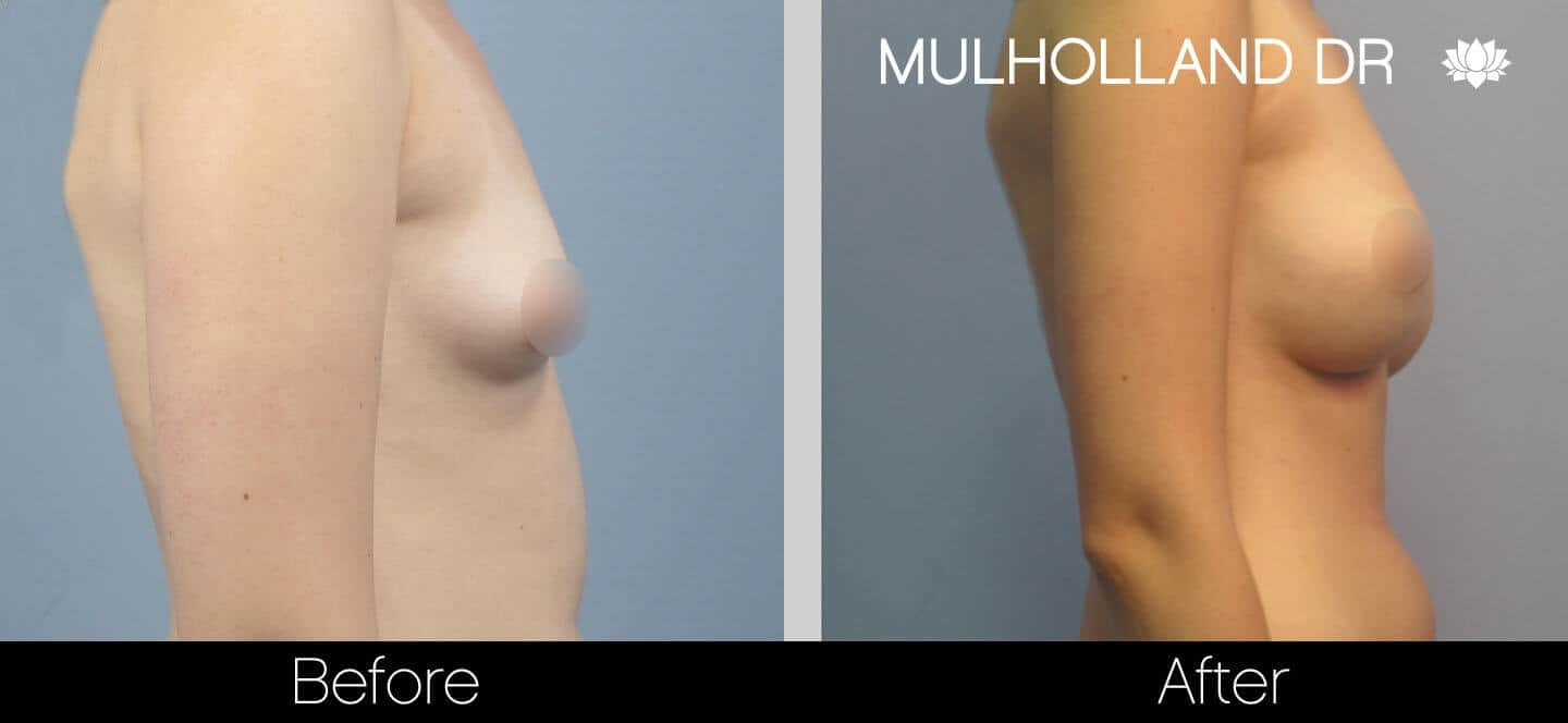 Breast Augmentation - Before and After Gallery - Patient Photo 26