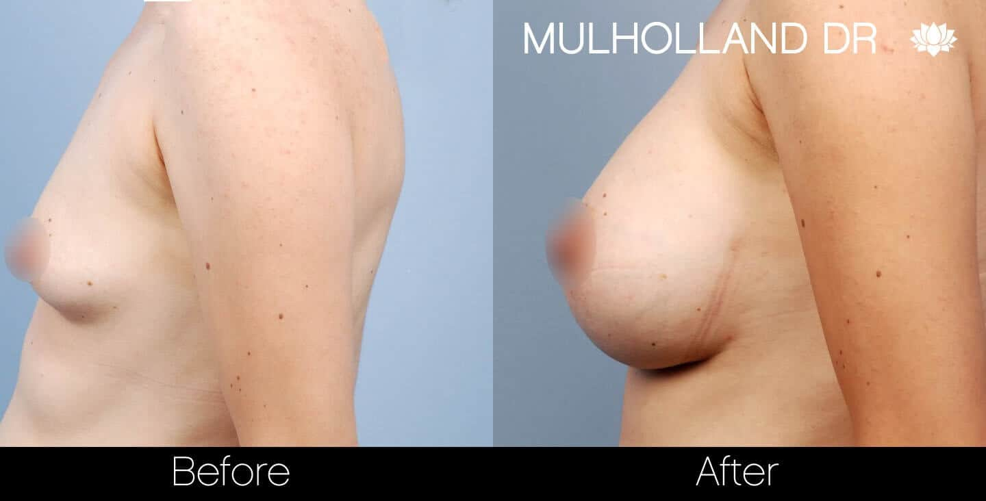Breast Augmentation - Before and After Gallery - Patient Photo 27