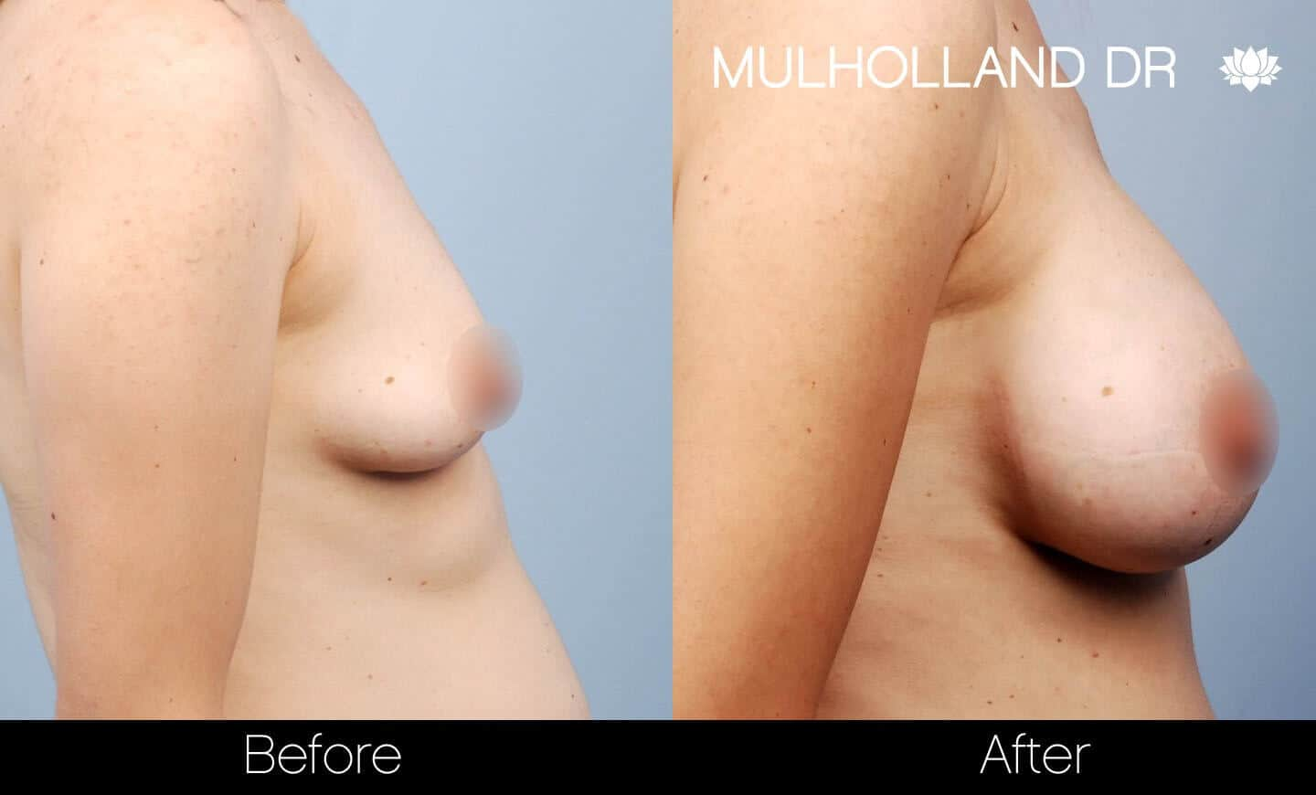 Breast Augmentation - Before and After Gallery - Patient Photo 28