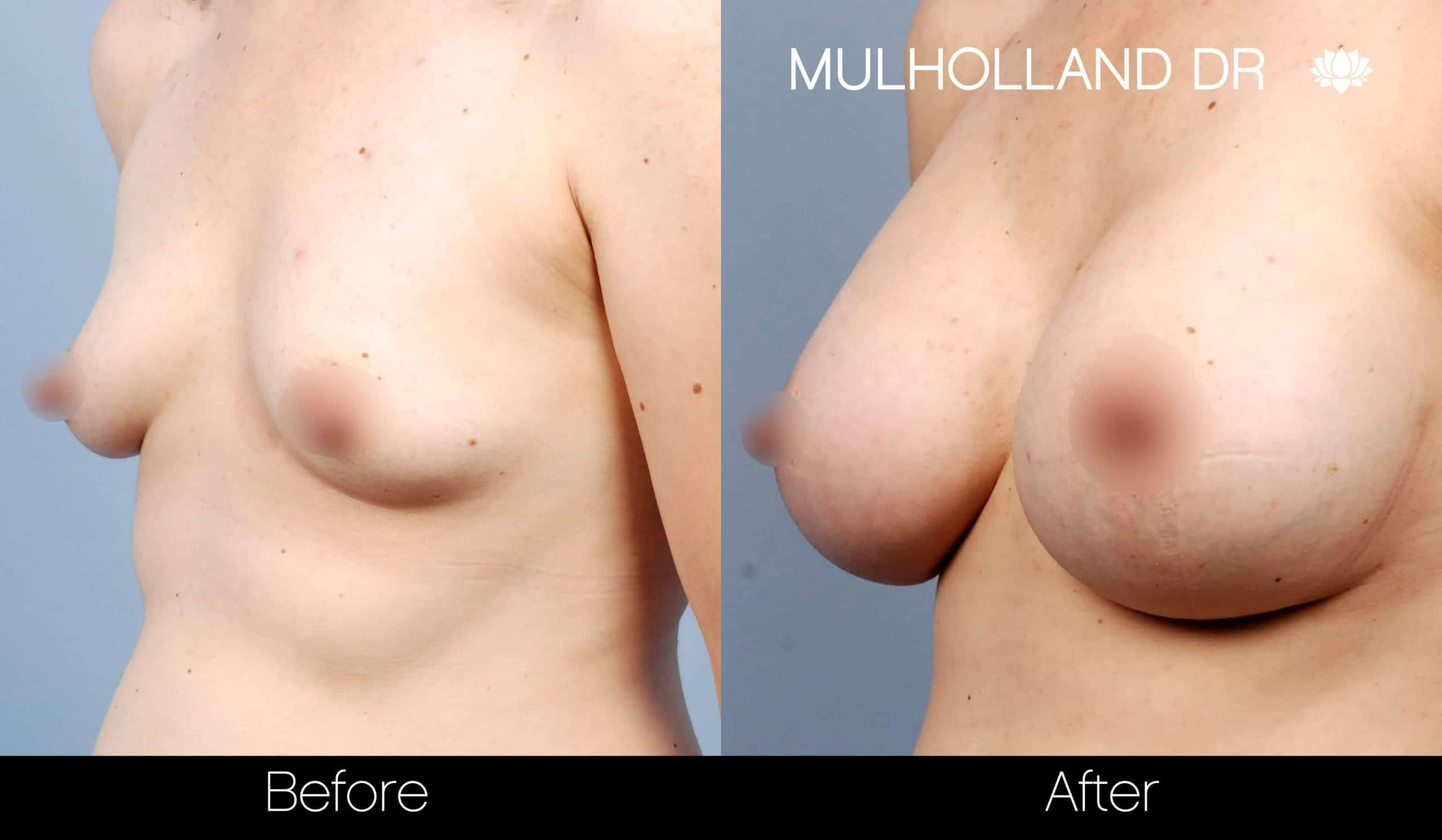 Breast Augmentation - Before and After Gallery - Patient Photo 29