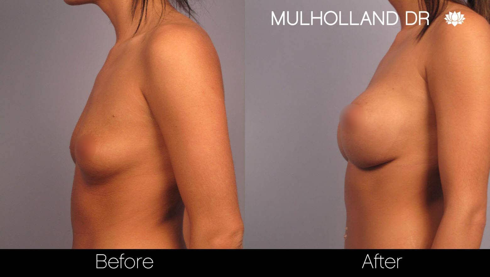 Breast Augmentation - Before and After Gallery - Patient Photo 3