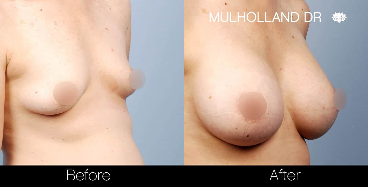 Breast Augmentation - Before and After Gallery - Patient Photo 30