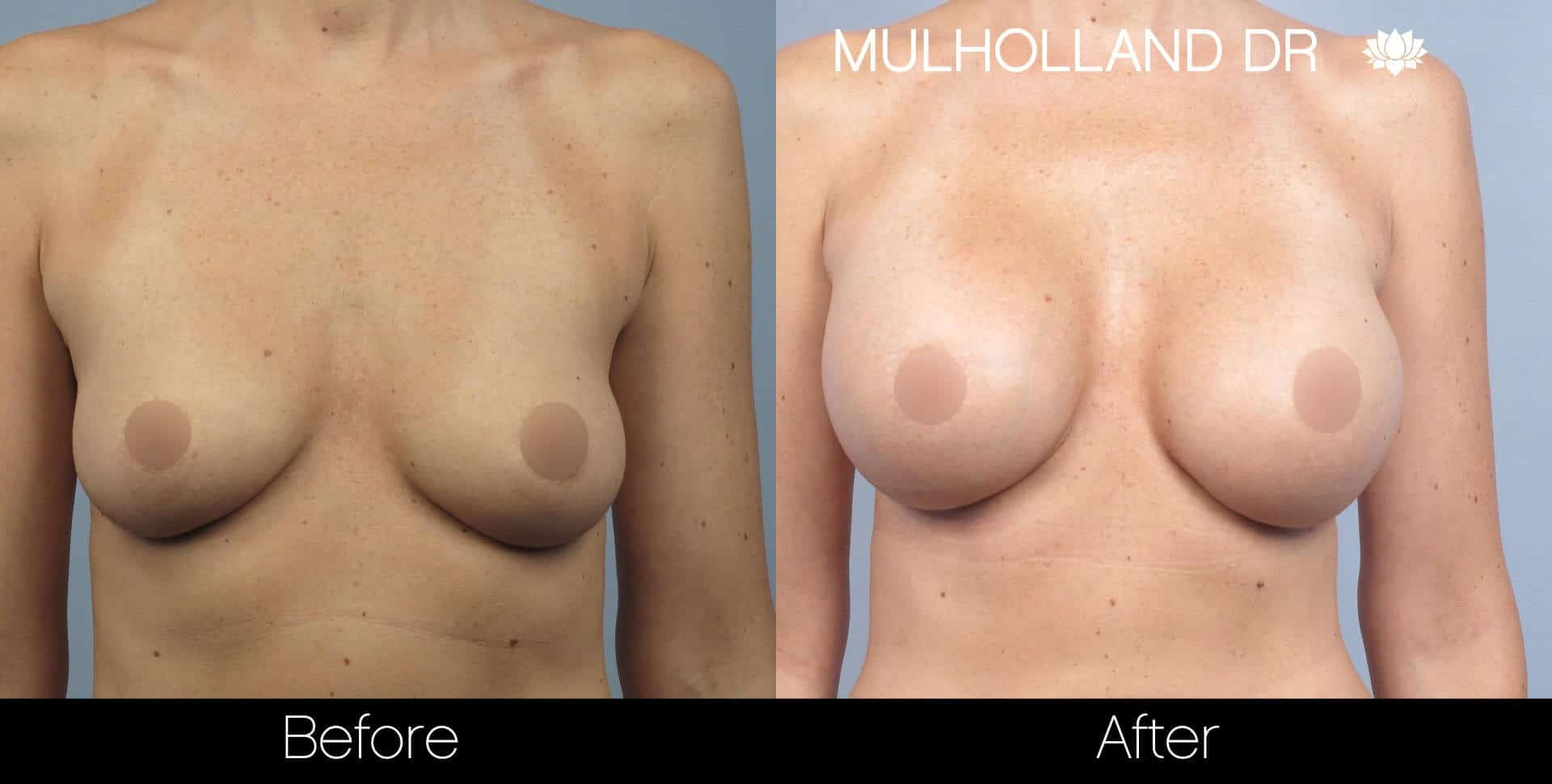 Breast Augmentation - Before and After Gallery - Patient Photo 31