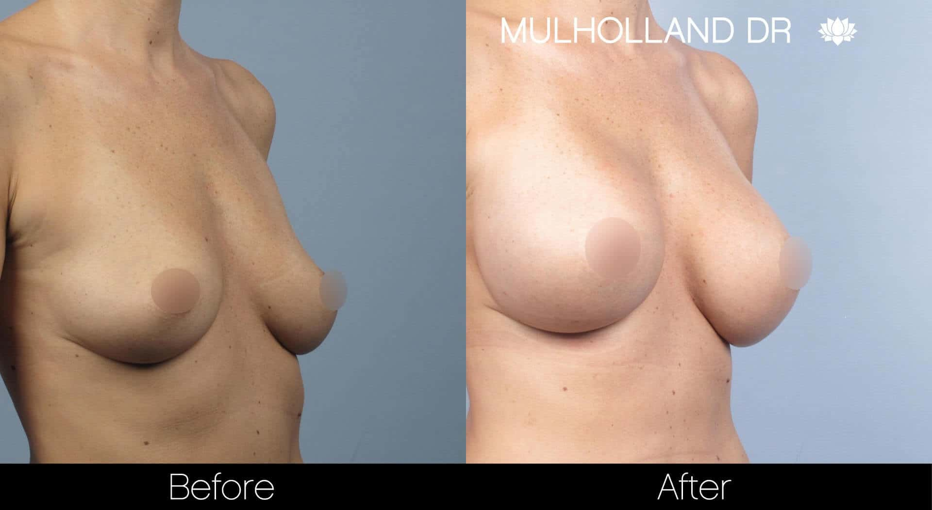 Breast Augmentation - Before and After Gallery - Patient Photo 32