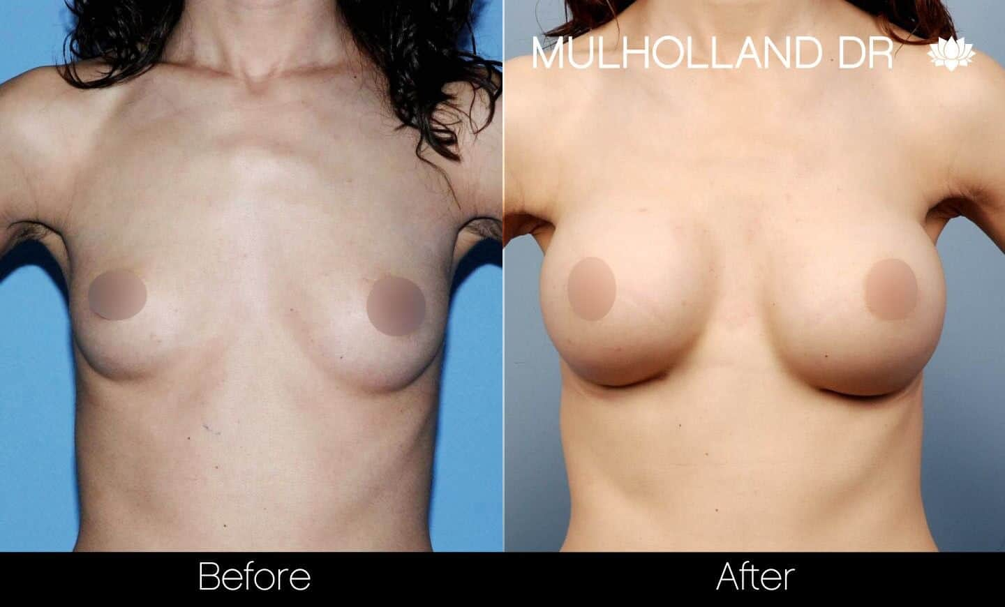 Breast Augmentation - Before and After Gallery - Patient Photo 33
