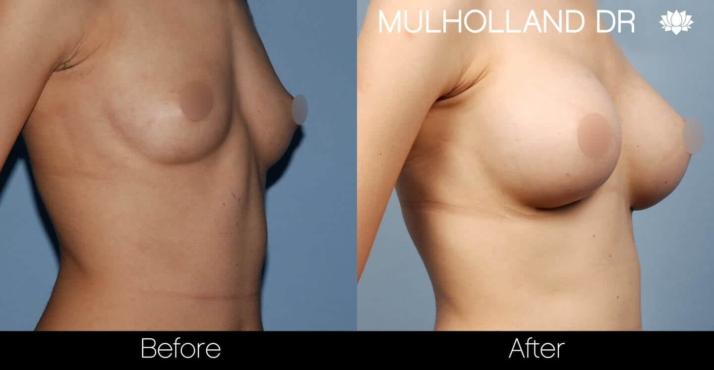 Breast Augmentation - Before and After Gallery - Patient Photo 34