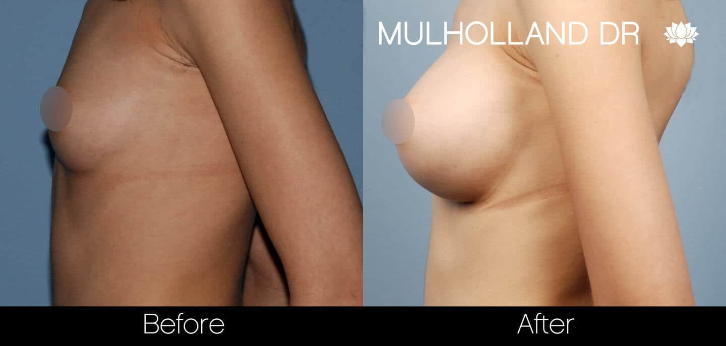 Breast Augmentation - Before and After Gallery - Patient Photo 35