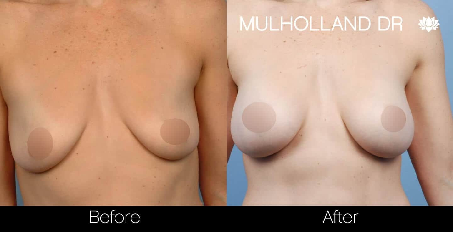 Breast Augmentation - Before and After Gallery - Patient Photo 36