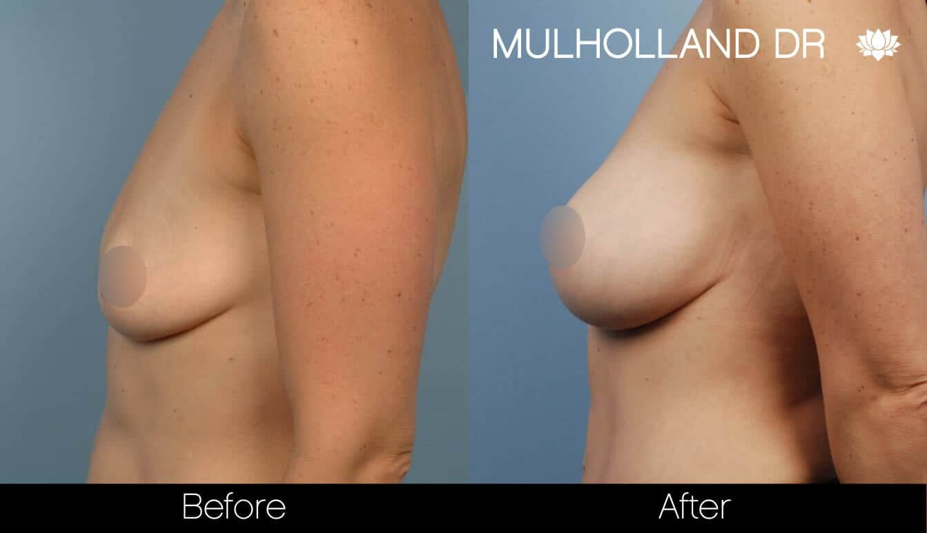 Breast Augmentation - Before and After Gallery - Patient Photo 37