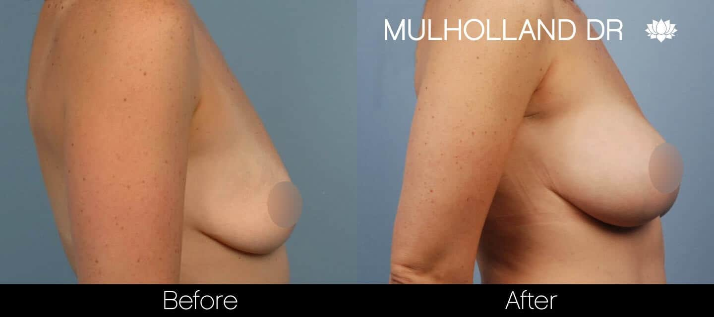 Breast Augmentation - Before and After Gallery - Patient Photo 38